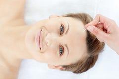 Opinión superior una mujer feliz en terapia de la acupuntura Fotografía de archivo