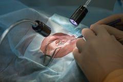Opthtalmology激光操作 库存照片