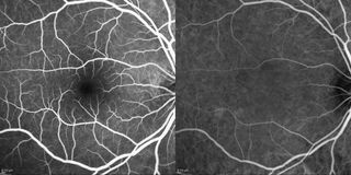 Optical Coherence Tomography Stock Images