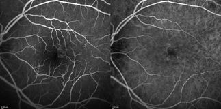 Optical Coherence Tomography Royalty Free Stock Photography