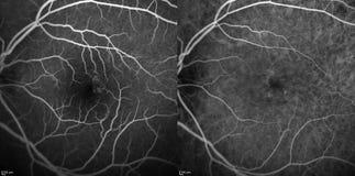 Optische Kohärenz-Tomographie lizenzfreie stockfotografie