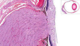 Optische zenuw en retina stock afbeeldingen