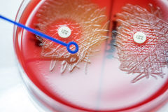 Optochin subsensitivity test on blood agar plate contains small Stock Photos
