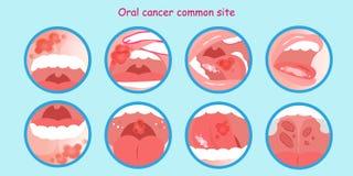 Oral cancer commom site stock illustration