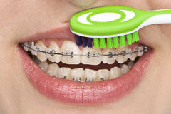Oral hygiene. Beautiful teeth with perfect oral hygiene Stock Image