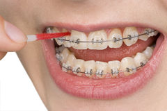 Oral hygiene. Beautiful teeth with perfect oral hygiene Stock Photos