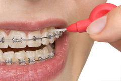 Oral hygiene. Beautiful teeth with perfect oral hygiene Royalty Free Stock Photography