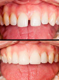 Before and after. Oral rehabilitation - Ceramic veneers on incisive teeth Stock Photo