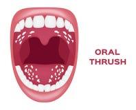 Oral thrush  . white tongue Stock Photo
