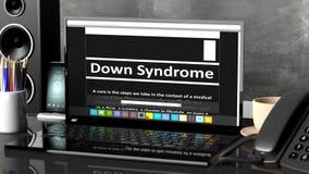 Ordenador portátil con la información de Síndrome de Down sobre la pantalla Fotos de archivo