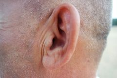Healthy side view of the ear royalty free stock photo