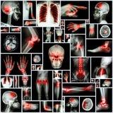 Organo ed artrite multipli dei raggi x della raccolta al giunto multiplo (reumatoide, gotta) Fotografie Stock