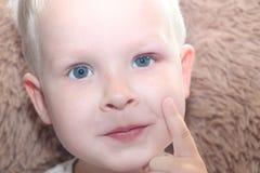 Orge, hordeolum dans un enfant Poche purulente sur l'oeil du garçon photo stock