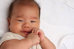 Oriental baby scarred Royalty Free Stock Photography