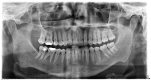 Original black white x-ray teeth scan mandible Stock Photo