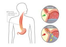 Orsak av sjukdomen för gastroesophageal lågvatten i mänsklig mage Royaltyfria Bilder