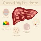 Orsaker av sjukdomen för fettig lever stock illustrationer