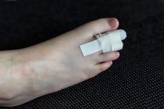 Orteil et bandage cassés Image libre de droits