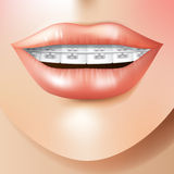 Orthodontic care Stock Image