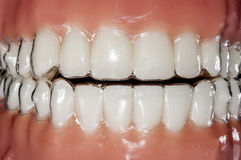 Orthodontic invisible aligner for teeth treatment. Teeth smiling: invisible and removable appliance for orthodontic treatment Stock Photography