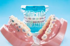 Dental tools and orthodontic model. royalty free stock photography