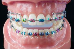 Orthodontic model. Royalty Free Stock Image