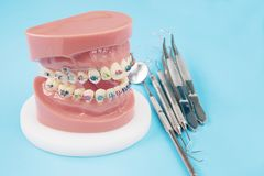 Orthodontic model. Royalty Free Stock Photos