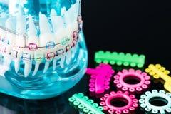 Orthodontic model. royalty free stock photo