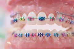 Orthodontic modell royaltyfri bild