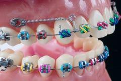 Orthodontic modell royaltyfri fotografi