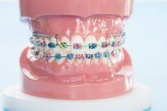 Orthodontic modell fotografering för bildbyråer