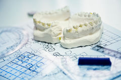 Orthodontic molds Stock Photos