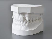 Orthodontic molds dental correction Stock Photo