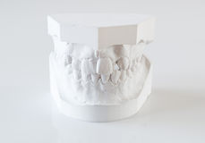Orthodontic molds. View of orthodontic molds on white background Royalty Free Stock Photography