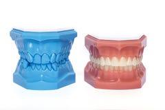 Orthodontic tandmodeller som används i tandläkekonst arkivfoto