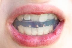 Orthodontic trainer for bite correction close up. Plastic orthodontic trainer for correction of teeth bite in open mouth of teenager close up royalty free stock photo