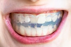 Orthodontic trainer for correction of teeth bite. In mouth of teenager royalty free stock images