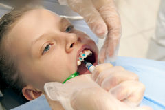 Orthodontic treatment Royalty Free Stock Photo