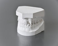 Orthodontic treatment, bad bite dental problems. Closeup of orthodontic molds on grey background royalty free stock image