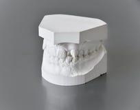 Orthodontic treatment Royalty Free Stock Image