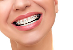 Orthodontic Treatment. Dental Brackets. Stock Photos