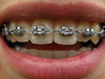 Orthodontic unit. Mouth, teeth and orthodontic unit Stock Photography