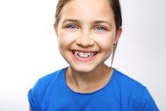 orthodontics fotografia stock