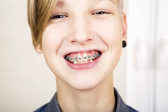 Orthodontics and bite correction. Teen with braces on his teeth. Orthodontics and bite correction Stock Photography