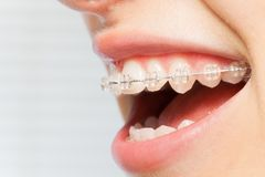 Free Orthodontics Correction Of Jaws With Clear Bracket Royalty Free Stock Image - 105195026