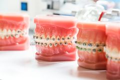 Orthodontics dental braces on teeth model to align teeth royalty free stock photography