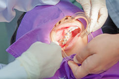 Orthodontics procedure with miniscrew. Royalty Free Stock Image