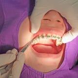 Orthodontics procedure with miniscrew. Stock Photography