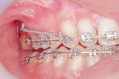 Orthodontics procedure with miniscrew. Royalty Free Stock Images