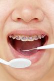 Orthodonties, concept dentaire Photos stock